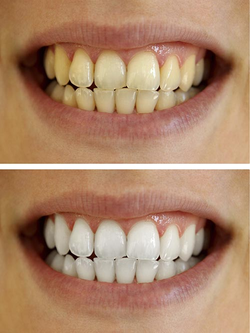 A patient before, and after a teeth whitening treatment.