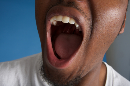 A close up of a patients mouth suffering from a burning sensation.